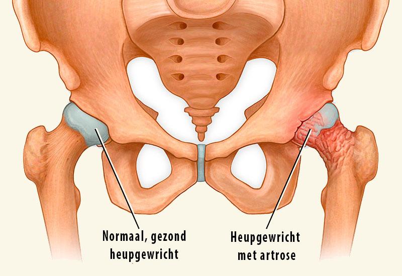 Coxartrose heupartrose