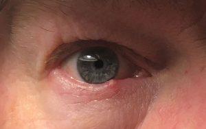 Strontje op mijn ooglid