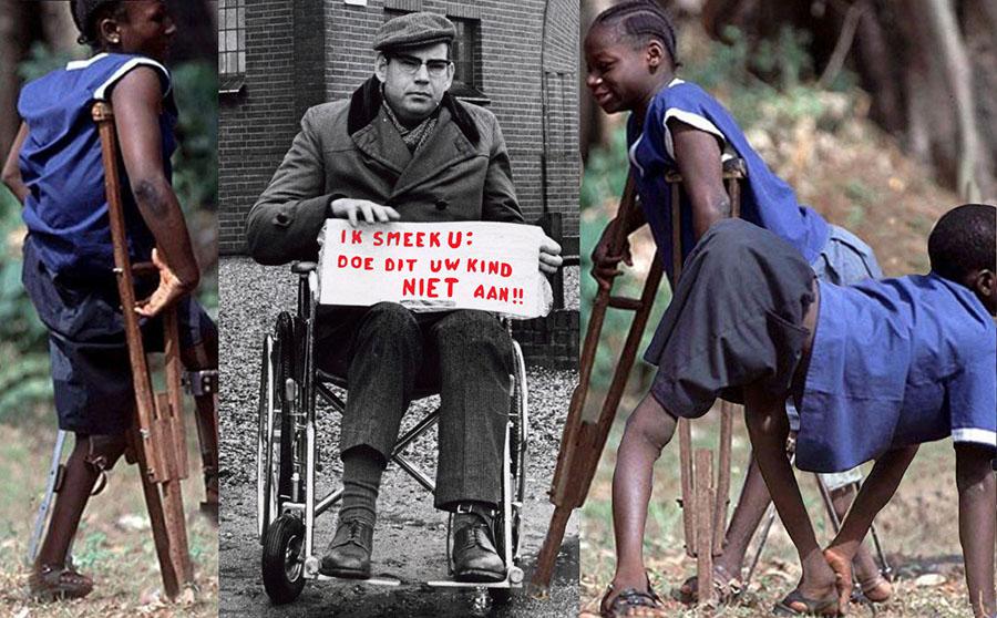 Polio toen en nu