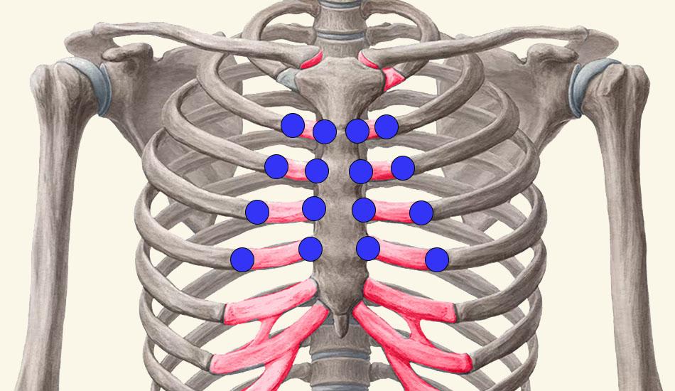 Syndroom van tietze - ribkraakbeen ontsteking